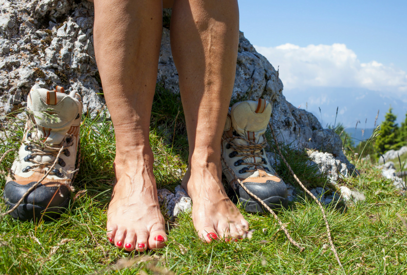 Varicose veins and thread veins: what they are and how to treat them