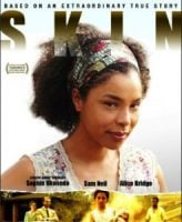 Skin-poster-246x300