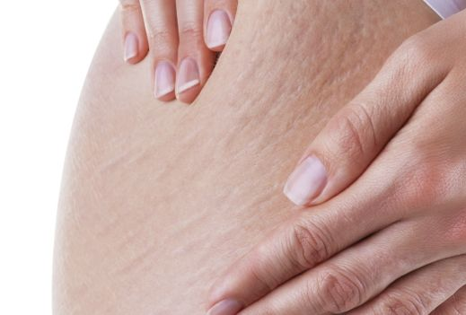 Say goodbye to stretch marks
