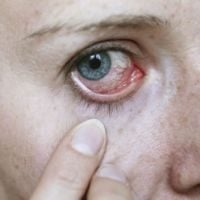 Woman with eye infection