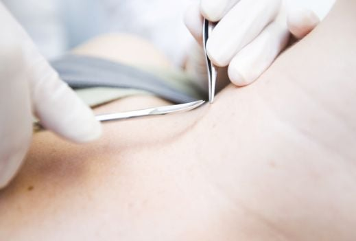 Skin tags: should you have them removed?