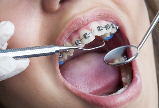 What it's like to… wear braces in your 40s