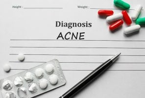 Acne and roaccutane