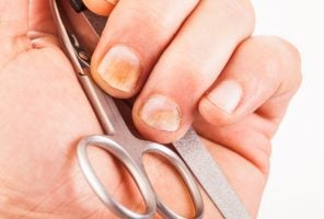 What your nails tell you about your health: image of yellow nails