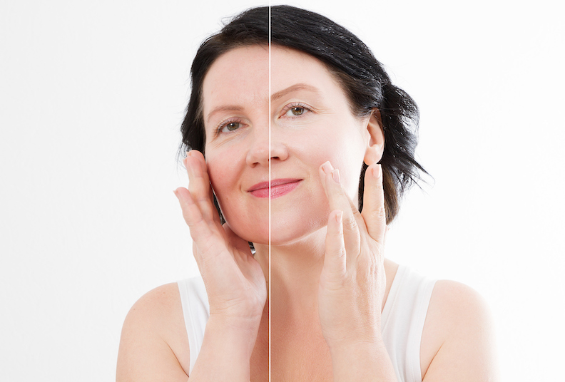 Emepelle: how menopause affects your skin