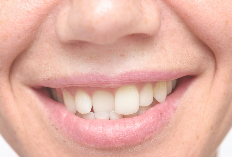 What causes misaligned teeth?