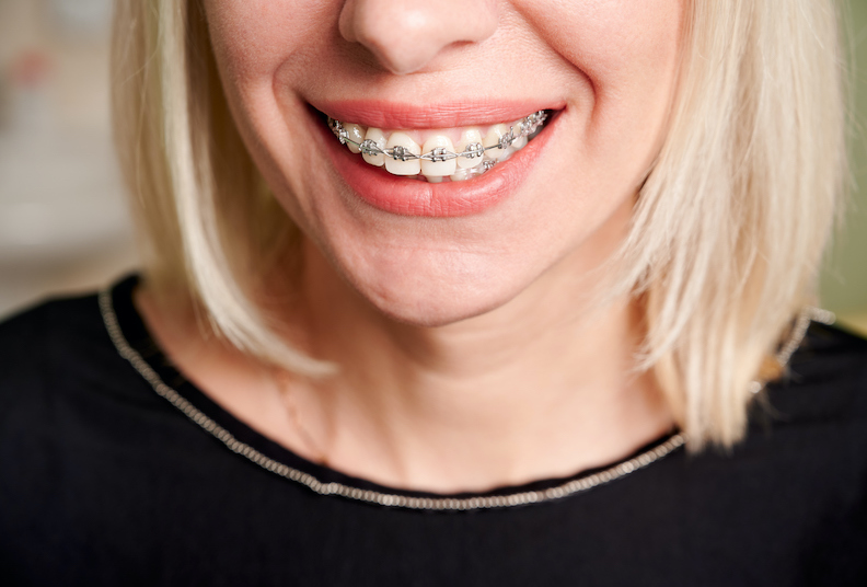 Three questions to ask before you get braces